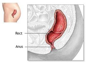 cancer-anal