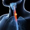Cancer la esofag