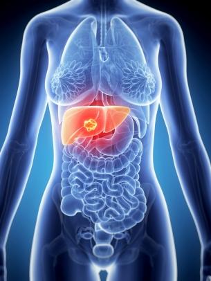 Hepatocarcinom