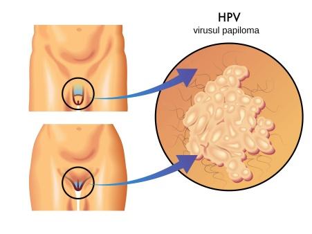 Virusul Papiloma - HPV