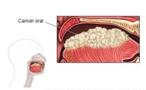 simptomele cancerului bucal