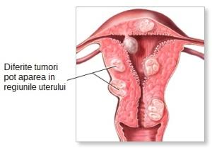 Simptomele sarcom uterin