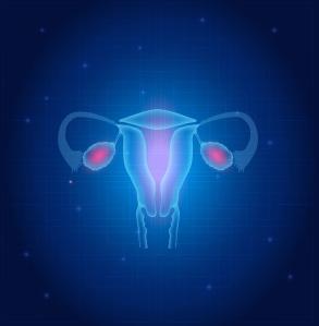 Cancer vulvar