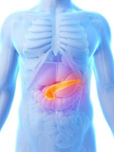 Cancer la pancreas - Ghid cancer Medicinas